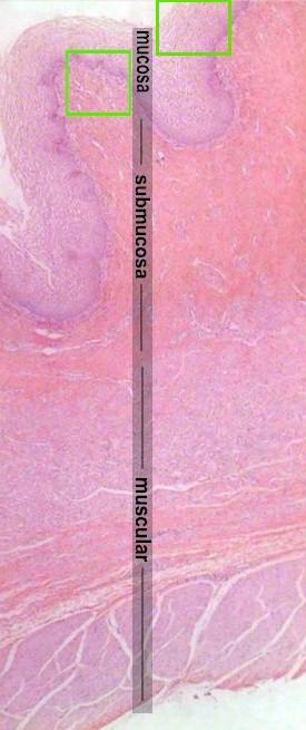 chappell Vagina crystal